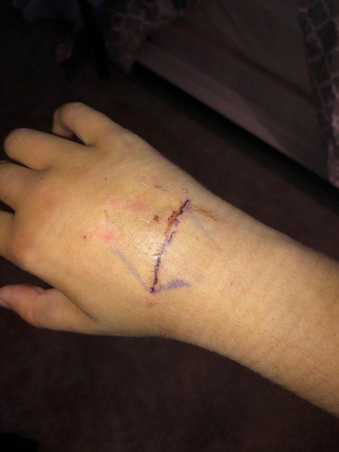 Cate+Thomas+overcomes+hand+injury